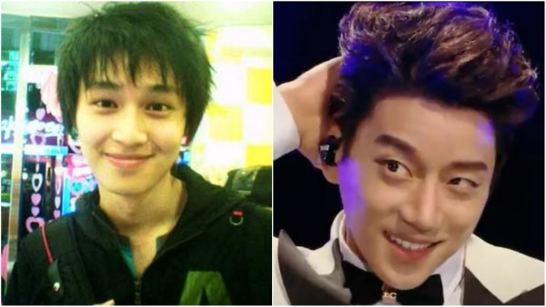 K-pop stars before and after plastic surgery