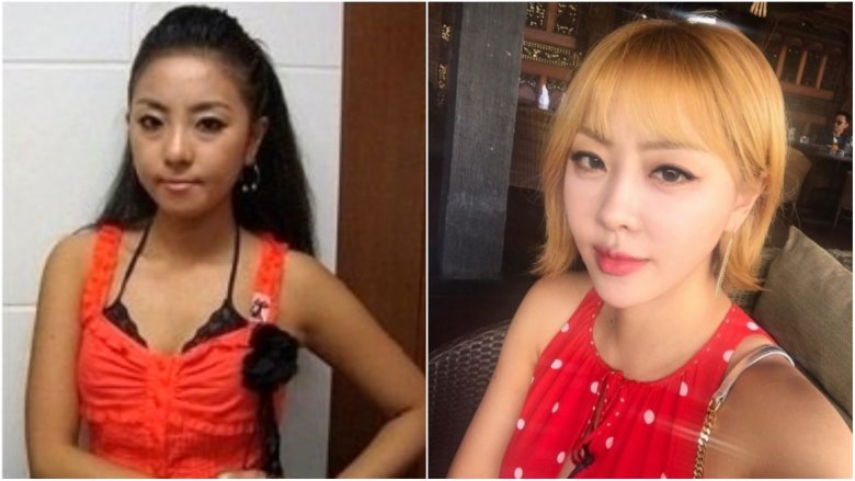 K Pop Stars Before And After Plastic Surgery