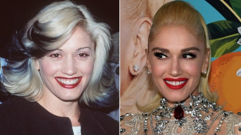 pop star plastic surgery before and after photos